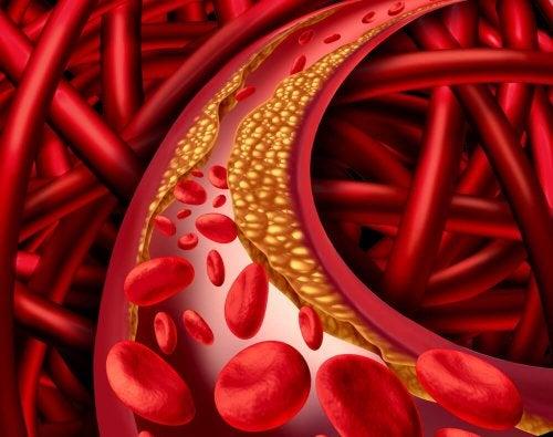 Colesterol na veia