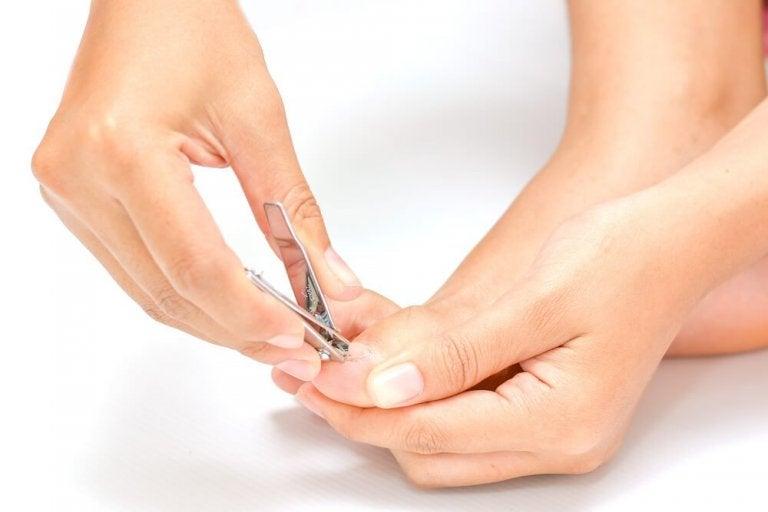 5 soluções naturais para as unhas encravadas