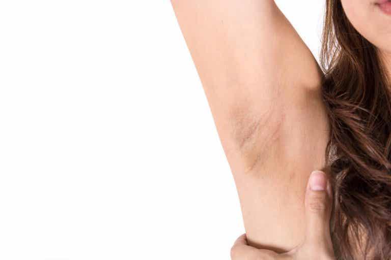 9 dicas para eliminar manchas das axilas após o parto