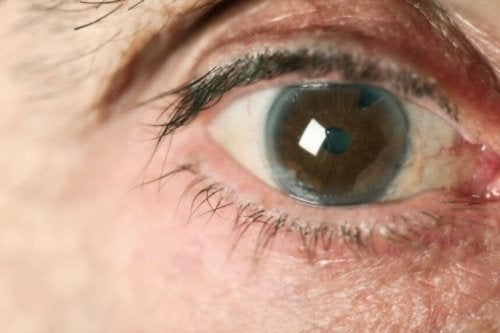 Glaucoma no olho
