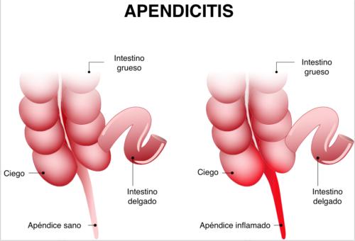 Apêndice inflamado