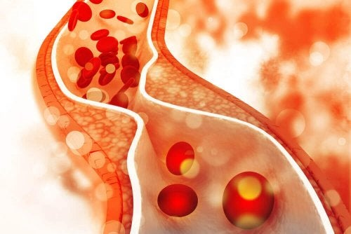Placas de colesterol obstruindo a veia