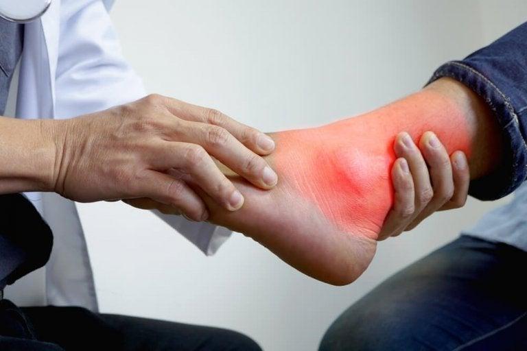 Conheça os melhores remédios naturais para as inflamações