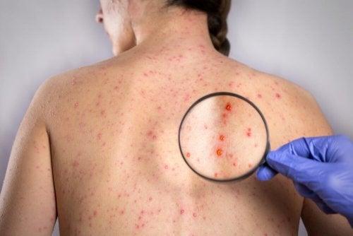 Mulher com sinal de herpes das costas