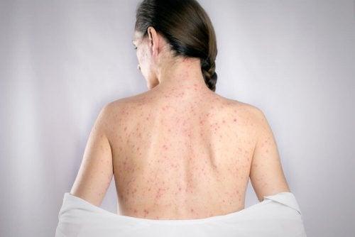 5 remédios para curar herpes das costas