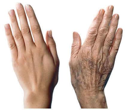 7 recomendações para cuidar das mãos e prevenir o envelhecimento