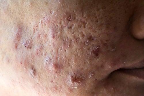 Rosto com acne