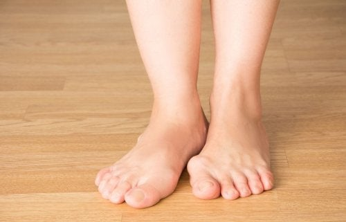 5 conselhos para prevenir o aparecimento de joanetes