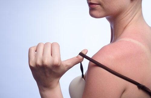 7 remédios naturais para tratar queimaduras de sol