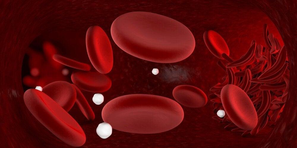 Remédios infalíveis para combater a anemia em casa