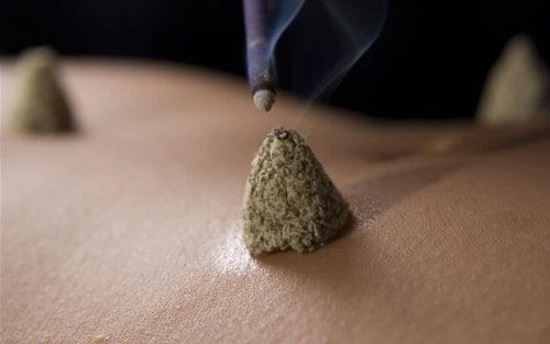 Terapia de moxabustão