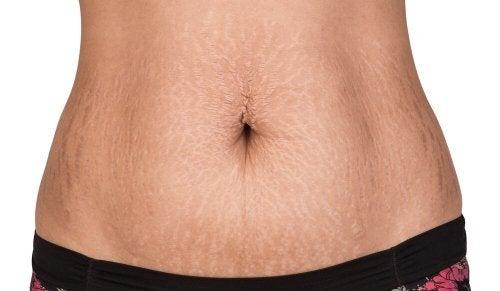 Tratamentos naturais para combater as estrias na pele