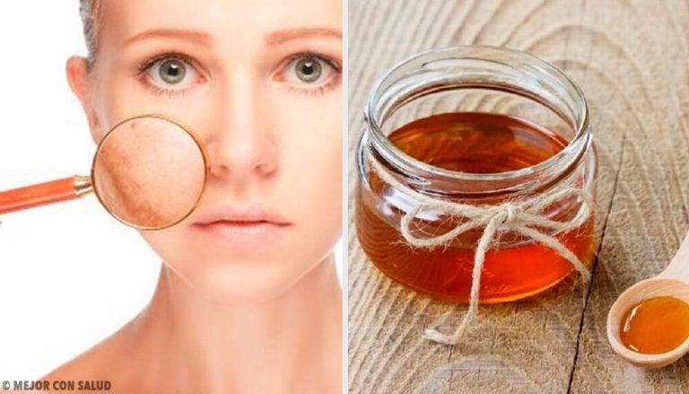5 remédios caseiros para tratar infecções da pele