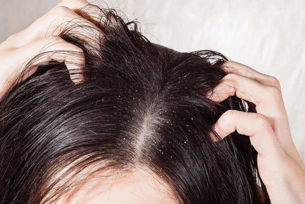 6 remédios para combater os fungos na cabeça