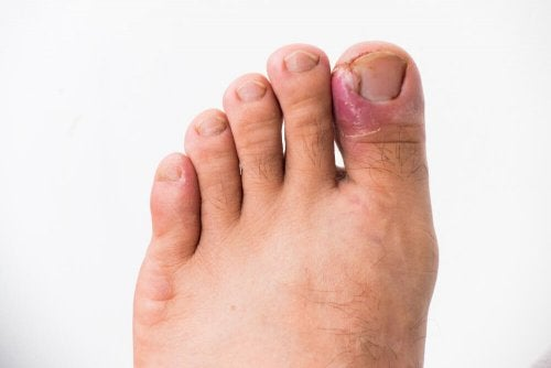 Infecção por unha encravada no dedão