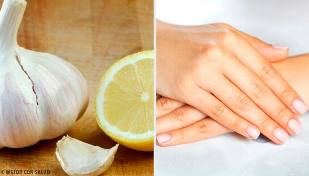 Remédios naturais para unhas fracas