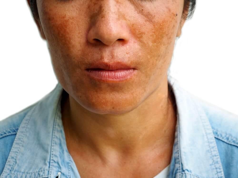 3 tratamentos para reduzir as manchas causadas por melasma