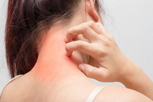 Como aliviar a alergia da pele: 3 tratamentos caseiros