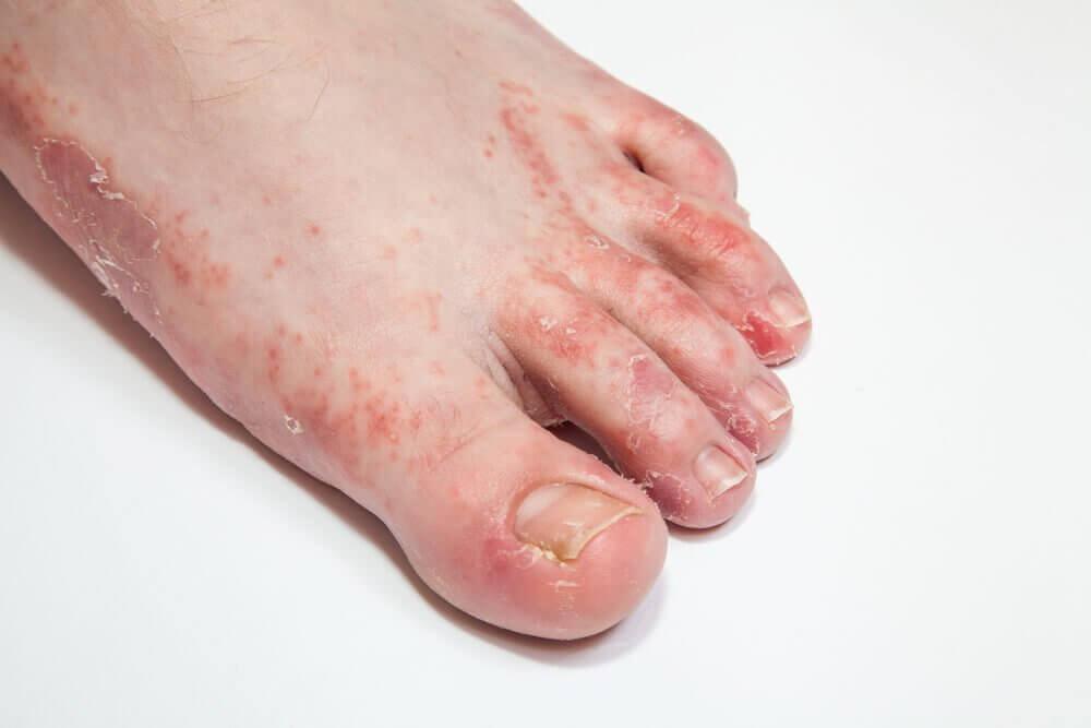 Conheça as causas e sintomas do pé de atleta e como tratá-lo em casa