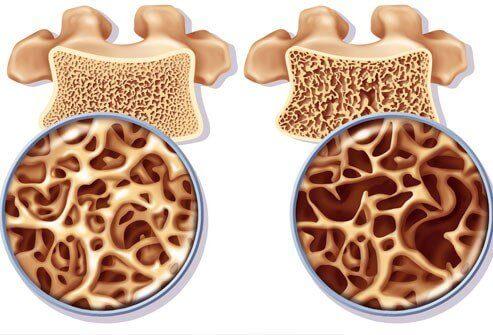 Prepare remédios ricos em cálcio para prevenir a osteoporose