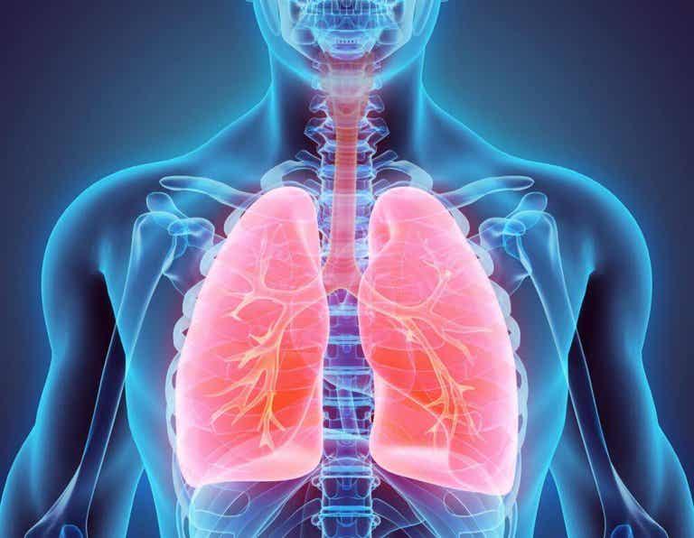 Bronquiectasia: tratamentos naturais para combatê-la