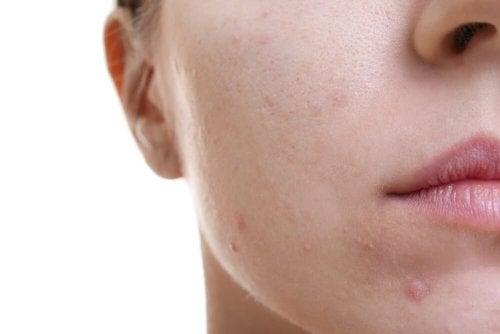 Descubra este incrível tratamento para a pele gordurosa