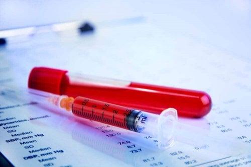 Os exames de sangue pode detectar um aborto espontâneo