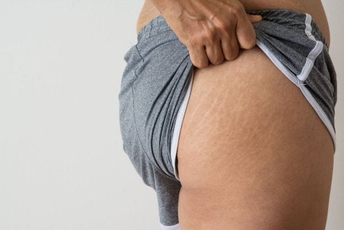 5 tratamentos com óleo de coco para reduzir as estrias e cicatrizes