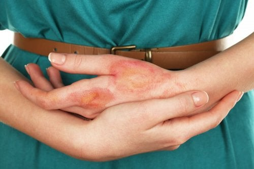 Mulher com queimadura na mão