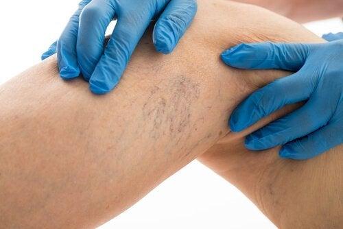 8 regras a seguir se você quiser curar as varizes