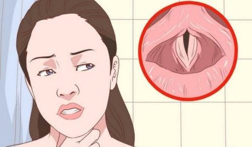 Desenho la laringe durante uma laringite