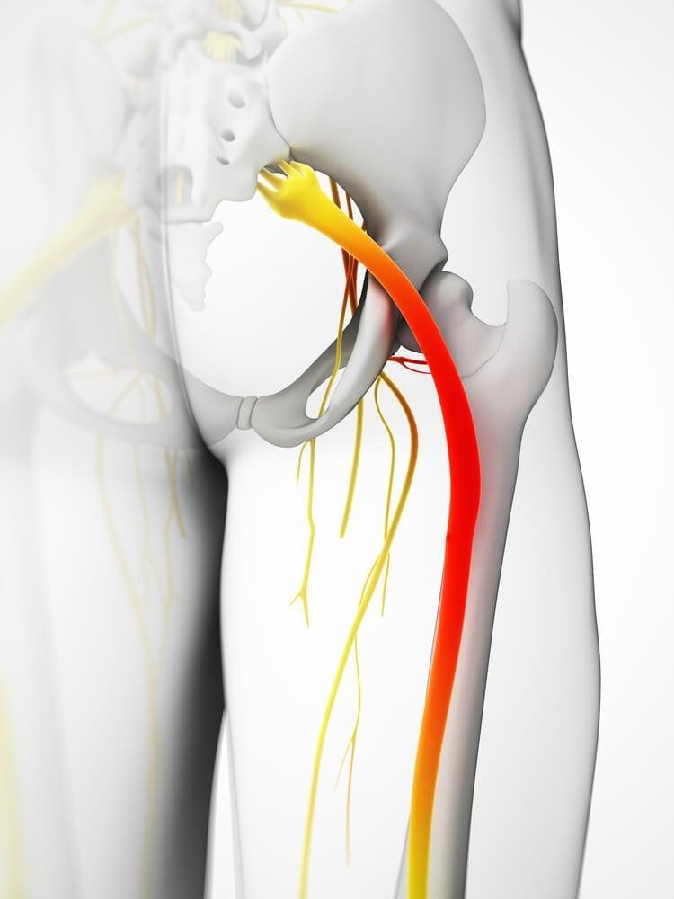 5 maneiras de fazer compressas para aliviar a dor ciática