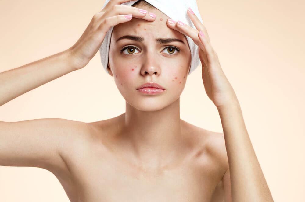 Como preparar 5 remédios com alho para tratar a acne