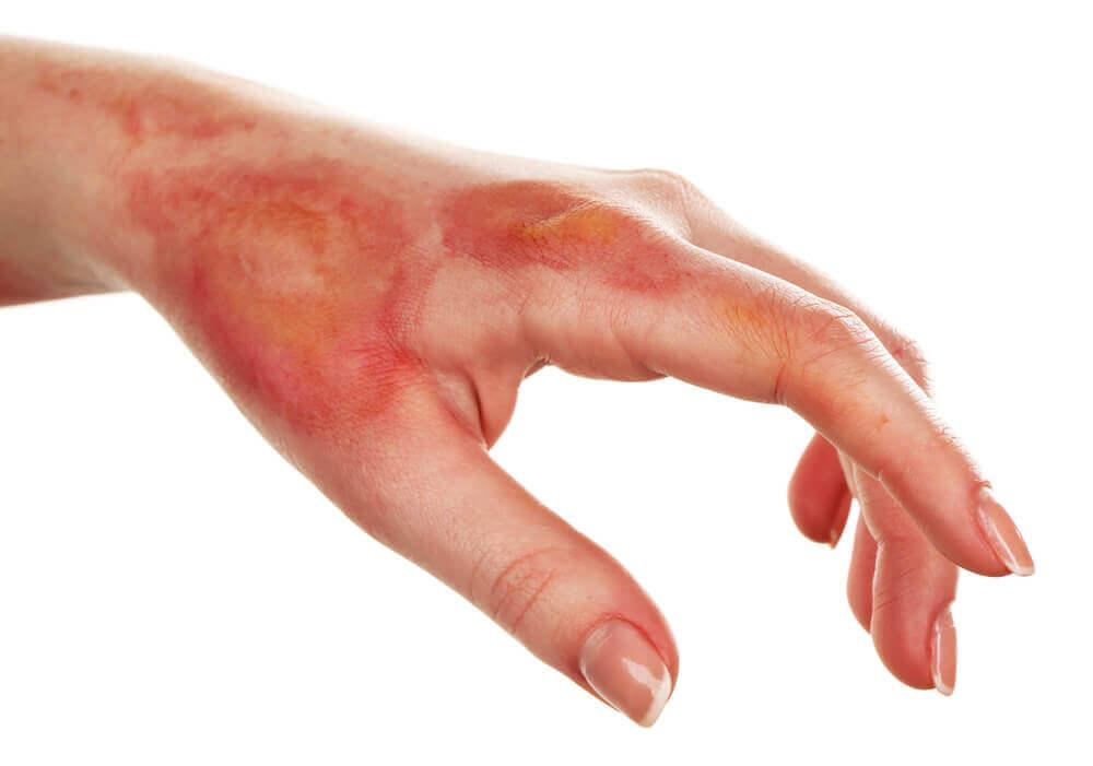 Como aliviar uma queimadura com remédios caseiros
