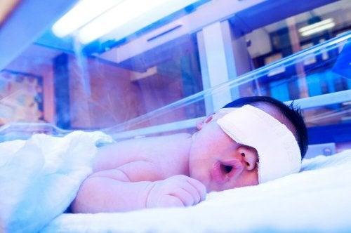 Quando o bebê tem icterícia, precisa de um tratamento com luz