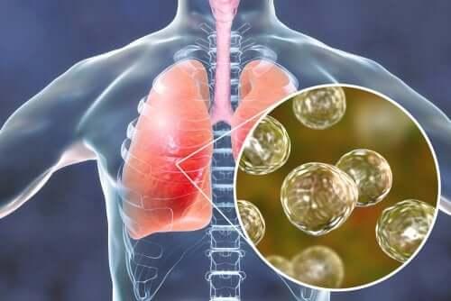 5 remédios naturais eficazes contra os sintomas da blastomicose