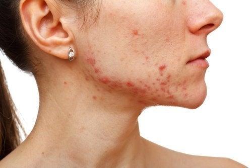 A água oxigenada ajuda a tratar a acne