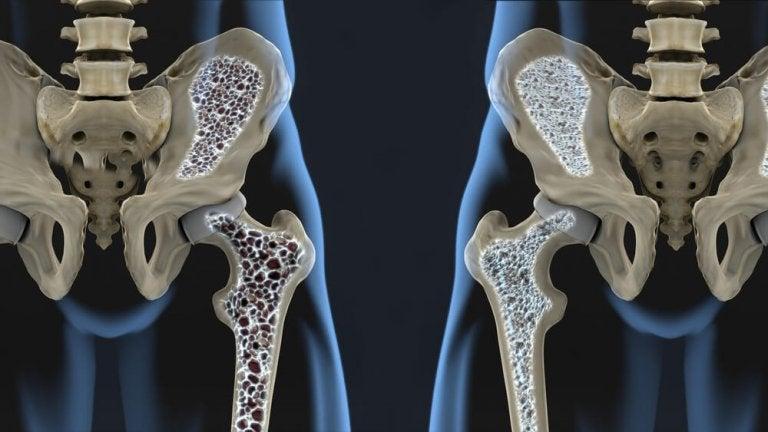 6 dicas para prevenir a osteoporose com a alimentação