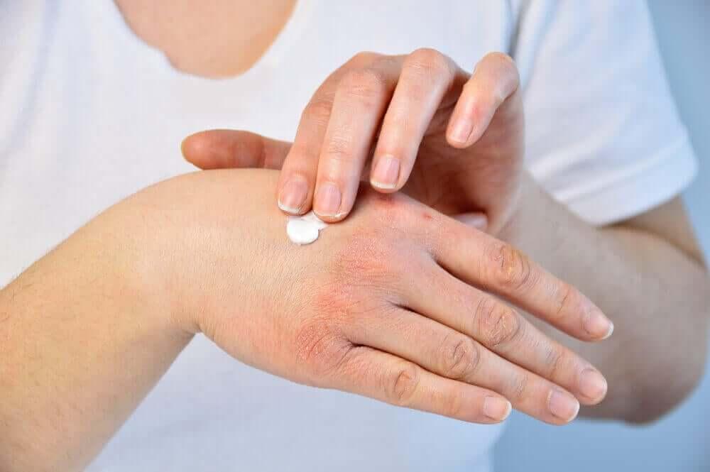 remédios naturais para a psoríase nas unhas