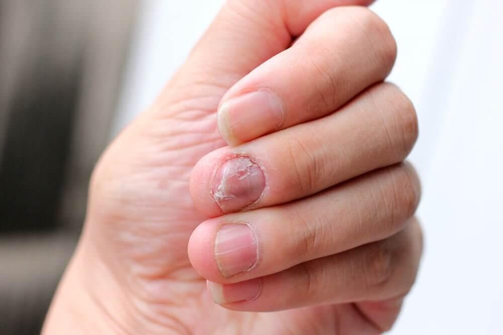5 remédios naturais para a psoríase nas unhas