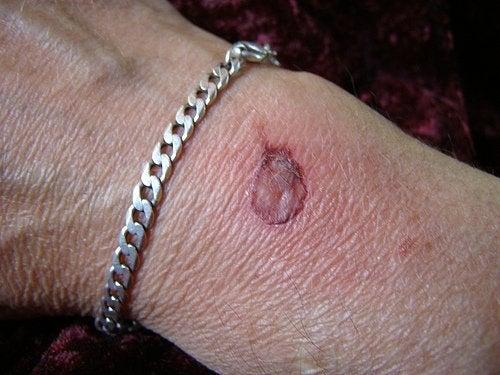 Cicatriz por queimadura