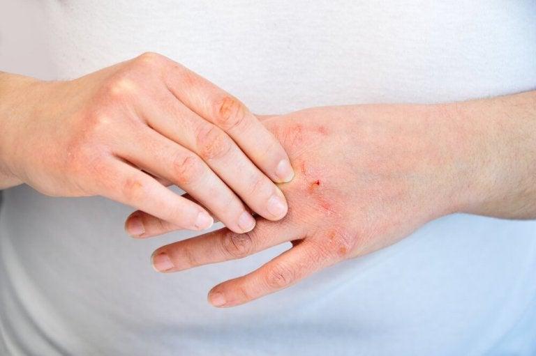 Como cuidar de mãos rachadas: 10 recomendações