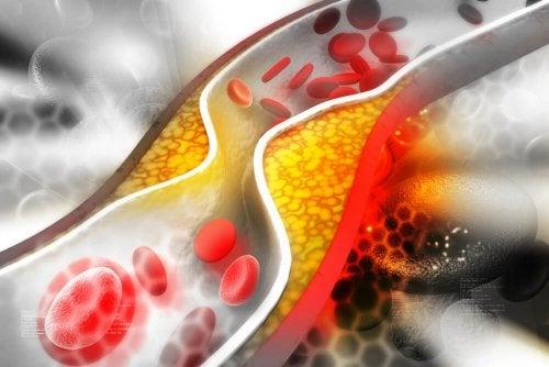 Colesterol influencia no controle da artrite