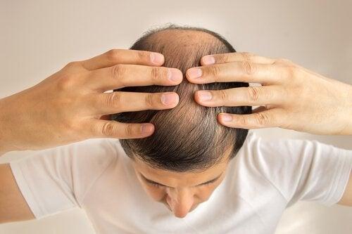 Conheça a razão da queda do seu cabelo