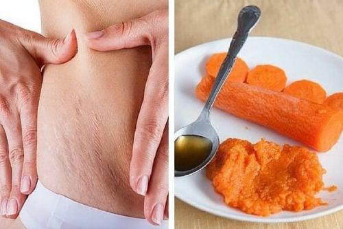 A cenoura ajuda a diminuir estrias na pele