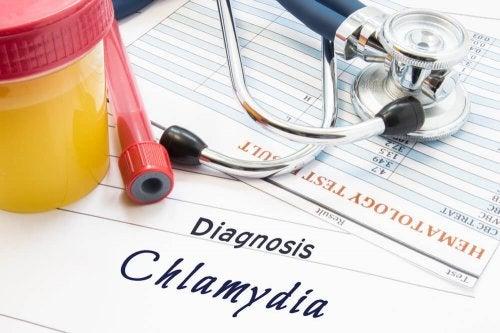 Testes para detectar clamídia
