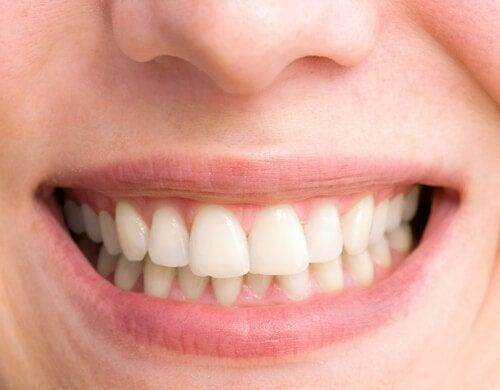 Chaves para conseguir um sorriso perfeito