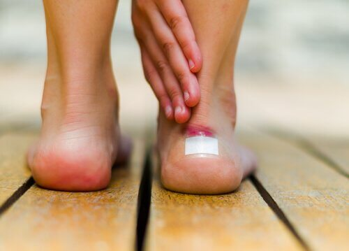 Bolhas na pele: 7 dicas para tratá-las