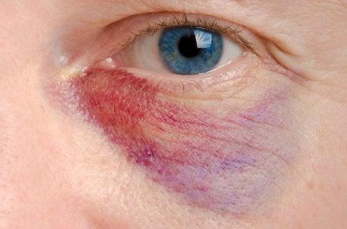 Como aliviar um olho roxo: 6 tratamentos naturais