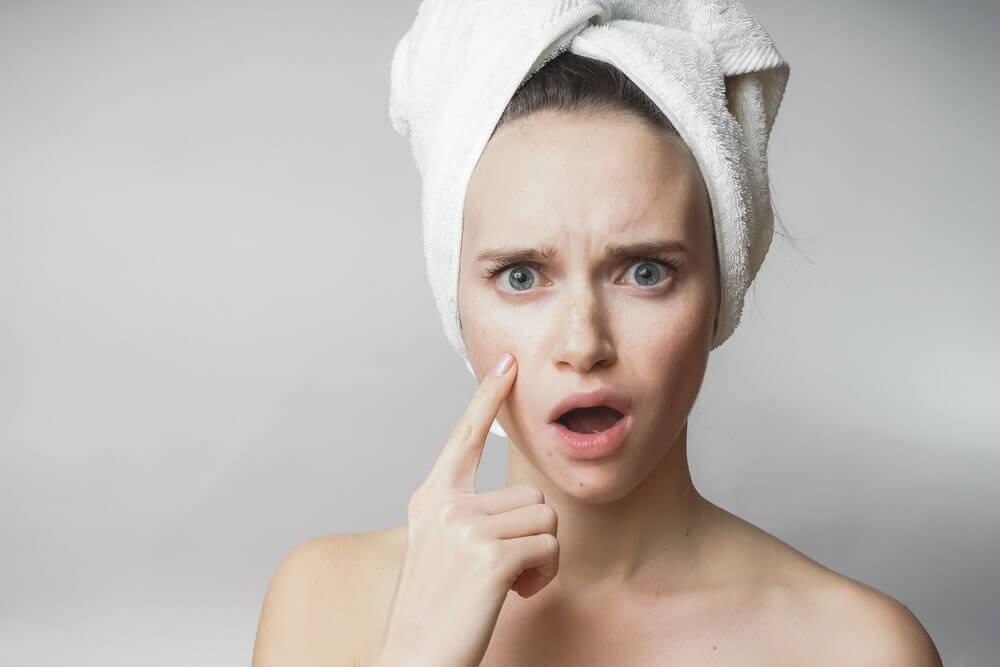 Dieta para controlar a acne: que alimentos devo evitar?